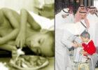 Kos Pembedahan RM1.3 Juta. Ini Kisah Kembar Ahmad Muhamad Dibantu Putera Arab Saudi
